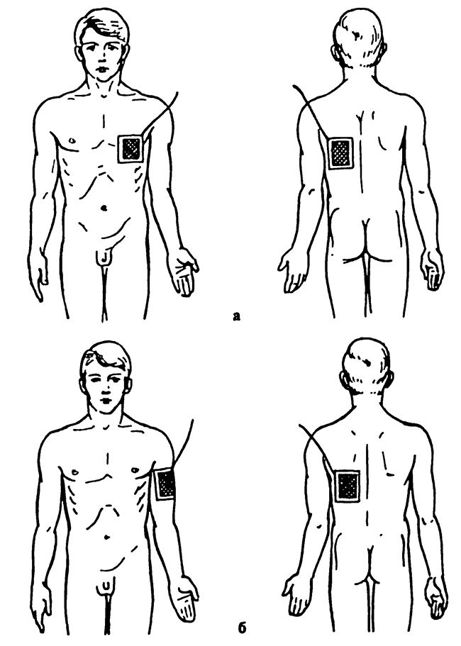 Гальванізація та електрофорез області серця: а - перший варіант б - другий варіант розташування електродів