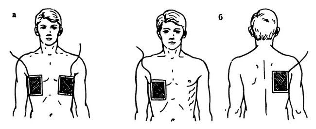 Гальванізація та електрофорез області легких