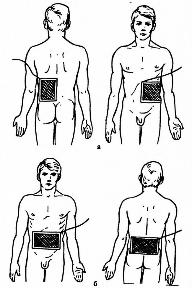 Гальванізація та електрофорез органів черевної порожнини