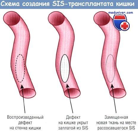 Методи вирощування кишечника для лікування скк досягнення интестинальной тканинної інженерії