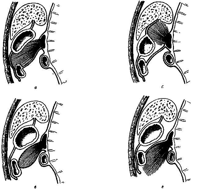 Кісти підшлункової залози - класифікація