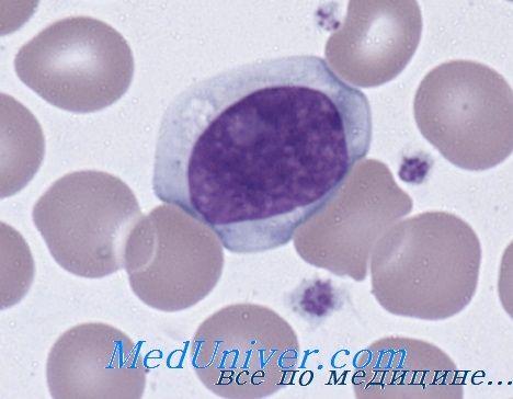 Моноцитоз і лімфоцитоз. Система комплементу