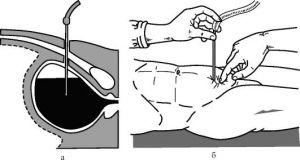 Надлобковая пункція сечового міхура