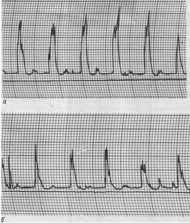 Допплерограмми лівої (а) і правої (б) очноямкових артерій. Асиметрія у вигляді різної амплітуди лінійної швидкості кровотоку зі зниженням її в правій очноямковуартерії