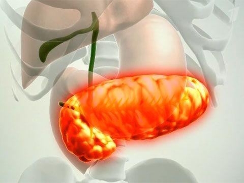 Непрохідність підшлункової залози