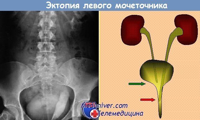 Обструкція середній частині сечоводу у дітей. Ектопія сечоводу