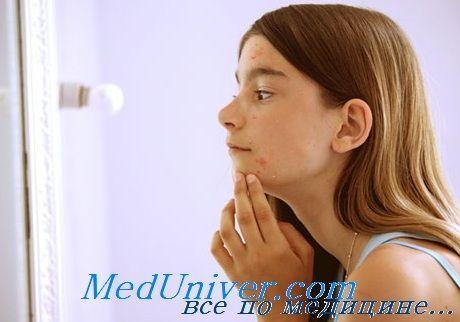 Оцінка статевого розвитку дівчаток. Збір анамнезу та огляд