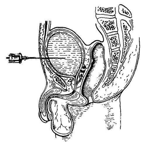 Пункція сечового міхура.