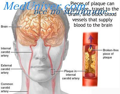 Мікроциркуляція мозку. Причини інсультів