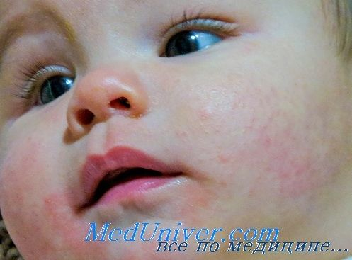 Ускладнення атопічного дифузного дерматиту. Прогноз дифузного нейродерміту