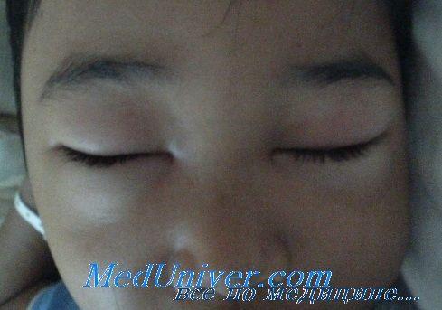 Ускладнення нефротичного синдрому у дітей. Прогноз
