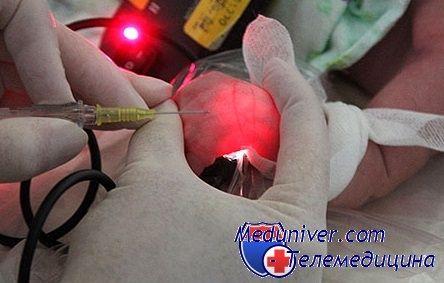 установка периферичного катетера у дитини