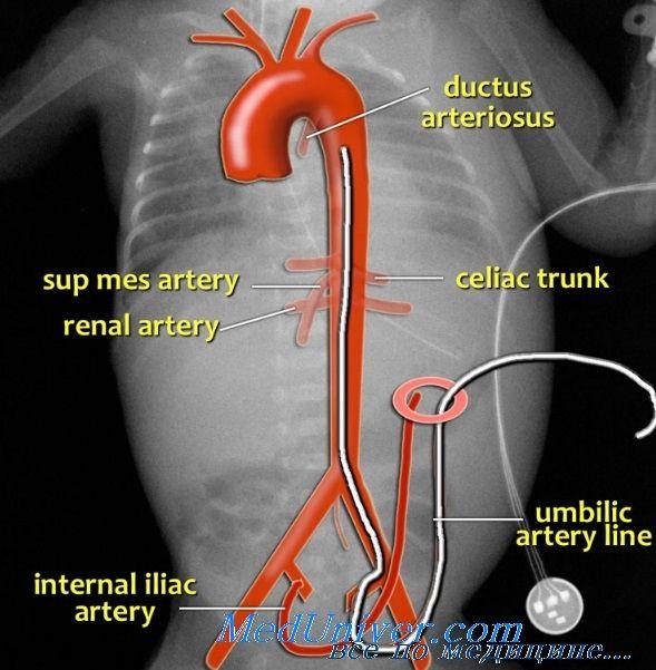 катетер для пупкової артерії