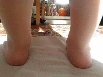Плосковальгусной стопа у дітей, лікування