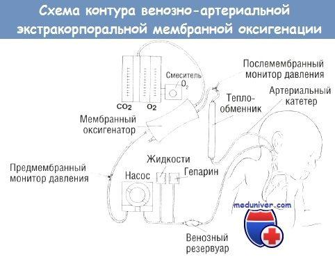 Схема контуру екстракорпоральної мембранної оксигенації (ЕКМО)