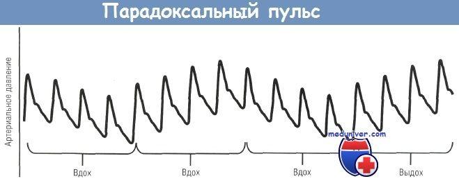 парадоксальний пульс