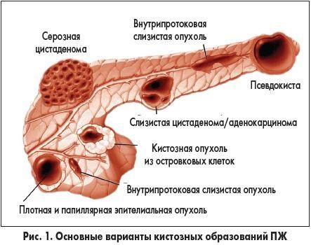 Поразка хвоста підшлункової залози