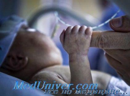 моніторинг газів крові в пупкової артерії