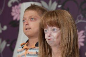 Прогерія у дітей: симптоми, лікування, причини
