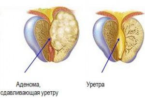Рак уретри: симптоми, лікування, причини, ознаки