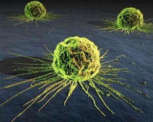 Рак жовчних шляхів, симптоми, лікування, ознаки, причини