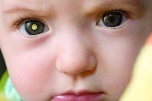 Ретинобластома у дітей: симптоми, лікування, причини, ознаки