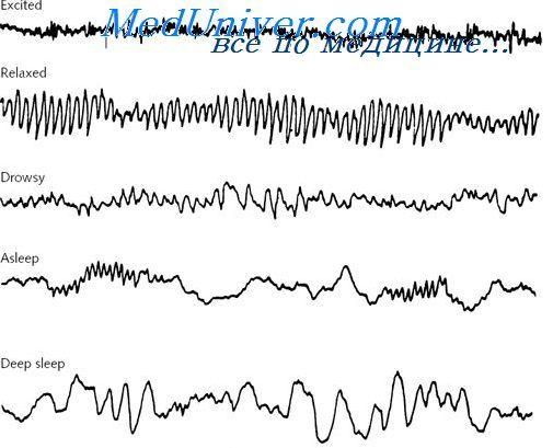 Мозкові хвилі і рівні активності мозку. Електроенцефалограма (еег) сну