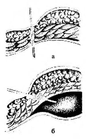 Напрямок введення в черевну порожнину голки Вереша: а - правильно-б - неправильно