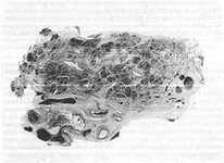 Стромальних компонент підшлункової залози