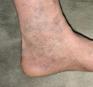 Відня на ногах після пологів. Набряклість ніг після пологів. Варикозне розширення вен причини виникнення.