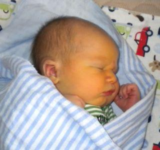 Жовтяниця у новонароджених. Причини виникнення. Жовтяниця у новонароджених - способи лікування. Гемолітична хвороба новонароджених