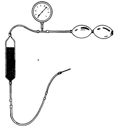 Монтаж ампули для впутріартеріального нагнітання крові.
