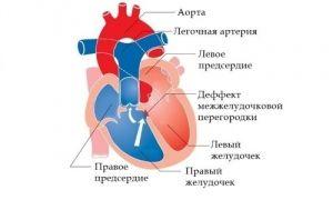 Транспозиція магістральних артерій у дітей: лікування, причини, симптоми
