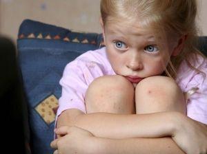 Тривожні розлади у дітей: лікування, симптоми, причини