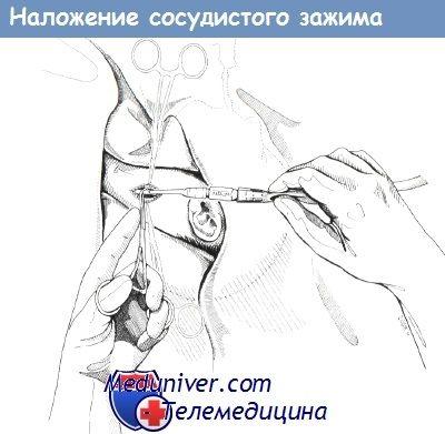 Накладення судинного затиску