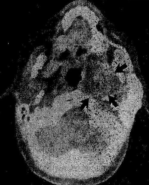 Посилена комп`ютерна томограма привушної залози