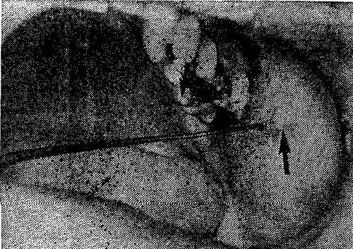 Розташування гирла протоки привушної слинної залози у другого корінного зуба верхньої щелепи