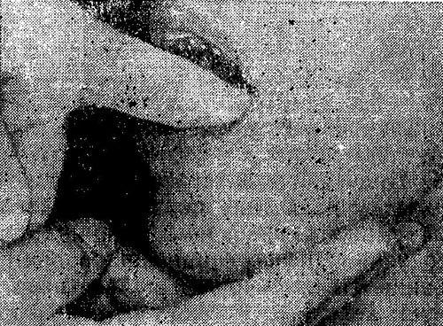 Бімануальна пальпація підщелепної залози