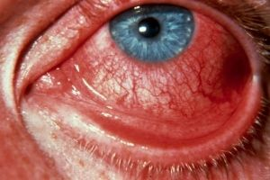 Вірусний кон`юнктивіт: лікування, симптоми, причини, ознаки