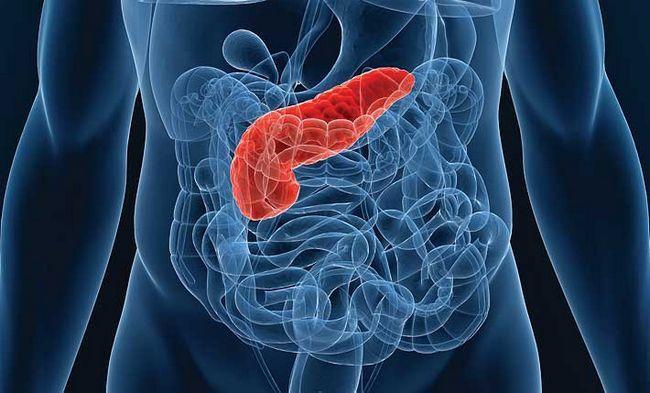 Запалення підшлункової залози, симптоми