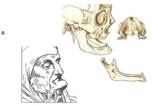 Вікові відмінності черепа ще