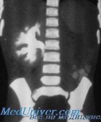 Вроджені аномалії нирок. Агенезія нирок