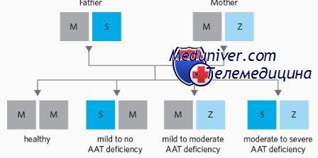 Жовтяниця у дитини при дефіциті альфа-1-антитрипсину (а1-ат)